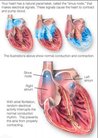 Atrial fibrillation diagram showing normal heart function versus atrial fibrillation